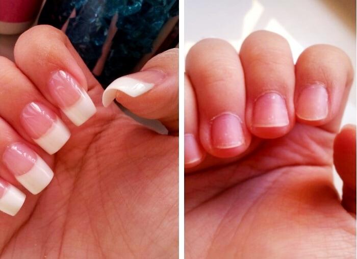 antes y después de uñas postizas